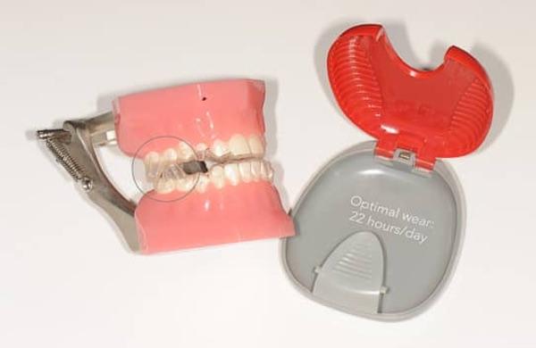 Invisalign Teen Avancement mandibulaire