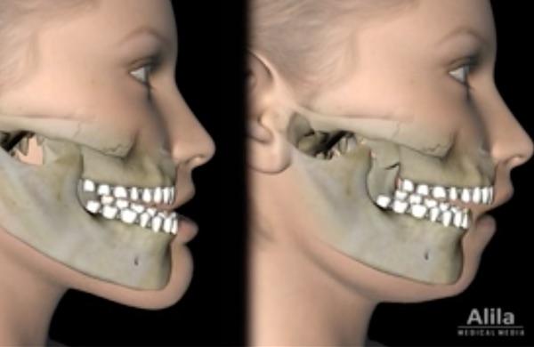 Principales chirurgies des maxillaires